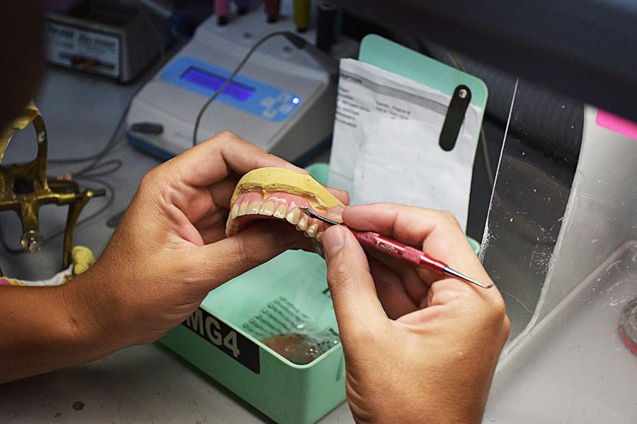 Denture Care & Repair | Saipan SDA Dental Clinic