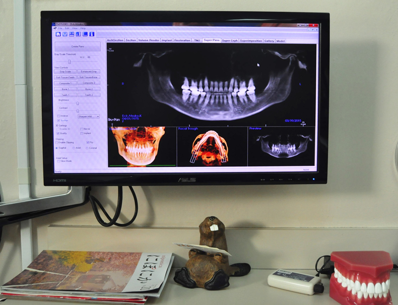 Digital X-Ray | Saipan SDA Dental Clinic